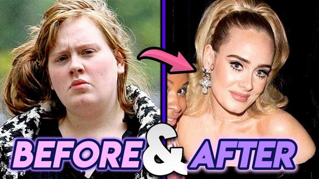 Why Adele Needed Weight Loss