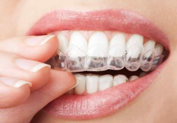 Tips For Treating Malocclusion