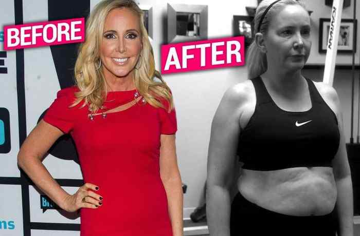 Shannon Beador weight loss before and after
