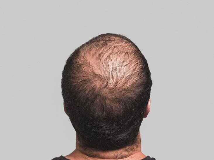 Effects of a Good Diet on Hair Loss