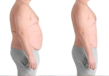 6 Reasons to consider weight loss surgery